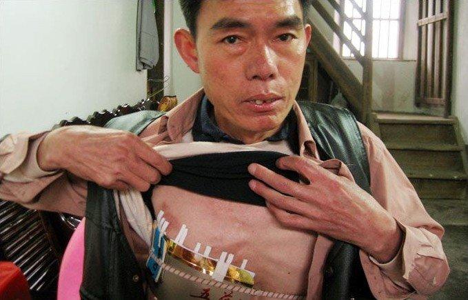 Жесть! Человек с дыркой в груди (2 фото)