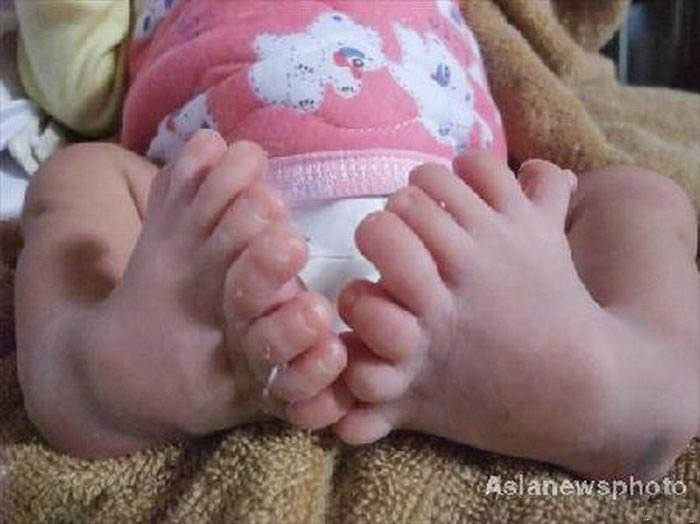 Восьмипальцевый малыш (3 фото)