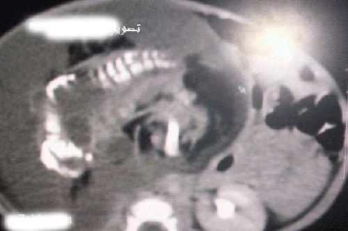 Беременный ребенок (7 фото)