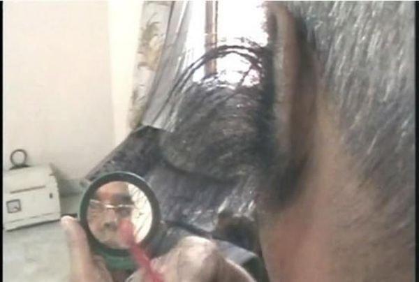Самые волосатые уши (8 фото)