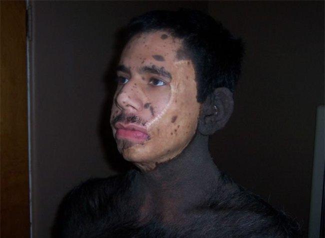 Человек-обезьяна (3 фото)