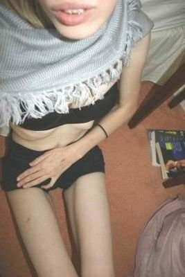 Болезнь худобы - анорексия (44 фото)