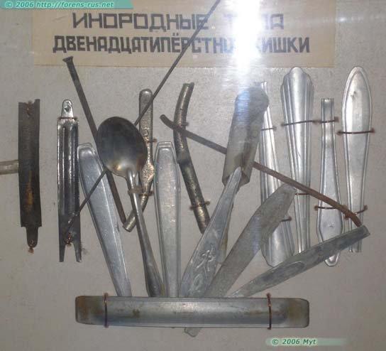 Золотая коллекция проктологического отдела одной из тюрем (5 фото)