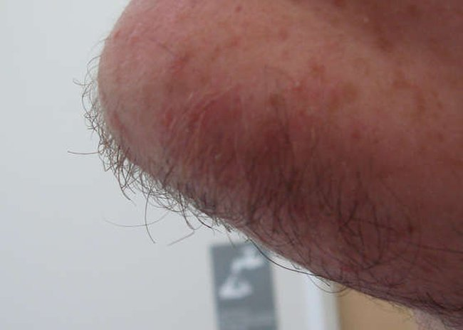 Самый дибильный способ побриться (23 фото)