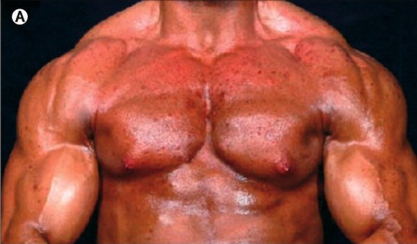 Последствия приема стеройдов (2 фото)