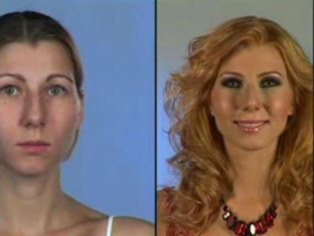 До и после пластики (31 фото)