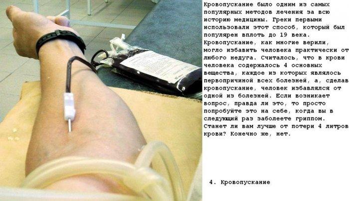 Топ 10 самого странного лечения (10 фото)
