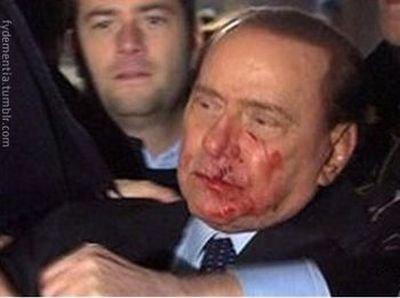 Что на самом деле случилось с Берлускони (5 фото)