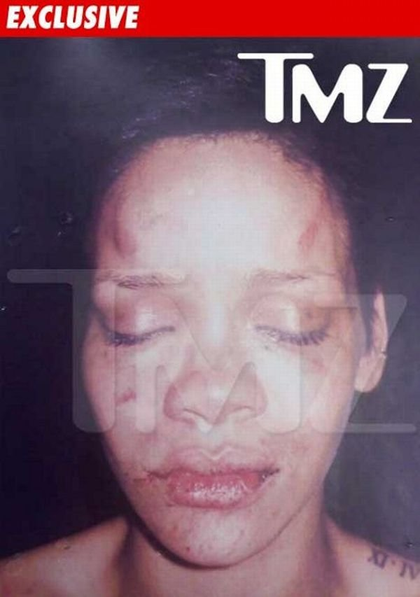 Избитая Риана (2 фото)