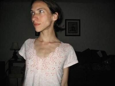 Очень худые девушки (41 фото)