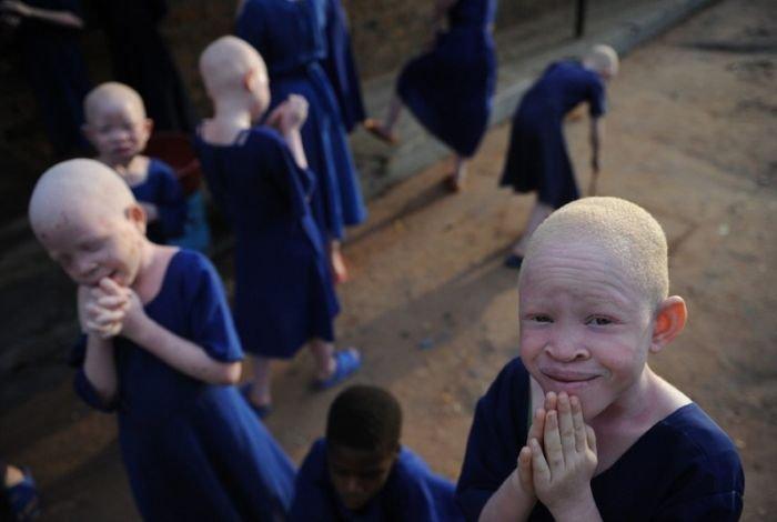 Африканские альбиносы (8 фото)