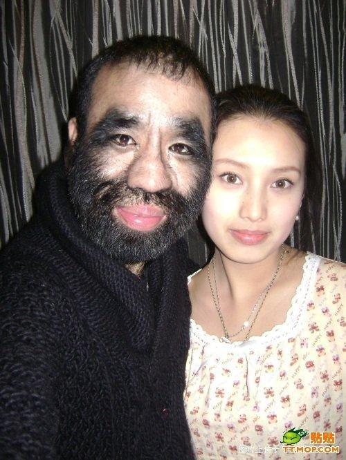 Волосатый человек (17 фото)