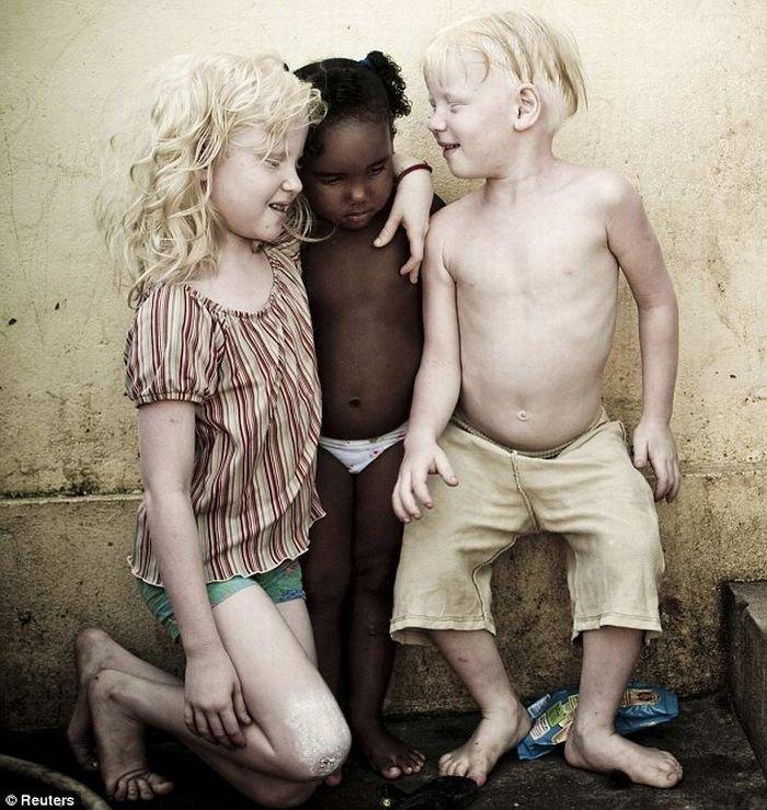 Три альбиноса в семье (4 фото)