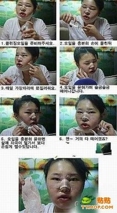 Пластическая операция на лице (9 фото)