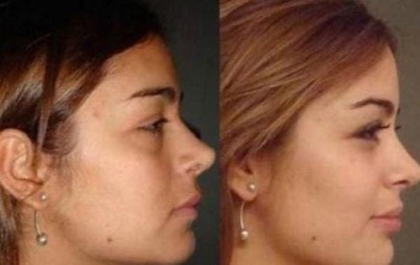 Ларисса Рикельме до и после пластической хирургии (9 фото)