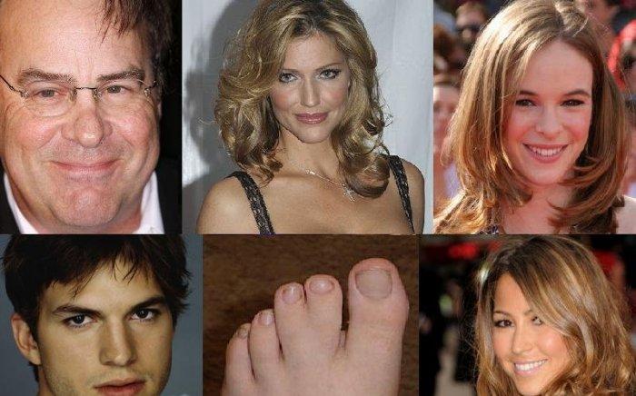 Дефекты тела знаменитостей (8 фото + текст)