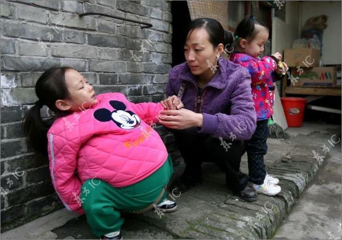 Девочка с огромным животом (19 фото)