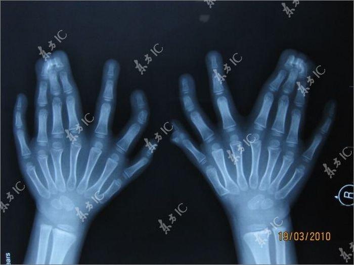 34 пальца (13 фото)