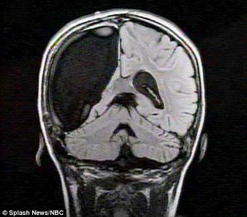Девочка с половиной мозга (6 фото)