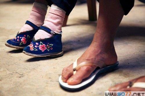 Самые маленькие ступни (6 фото)