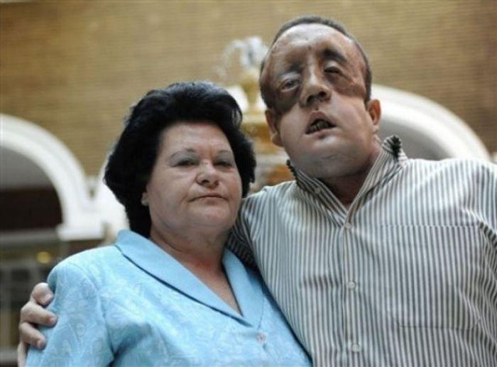 Вторая в мире пересадка лица (11 фото)
