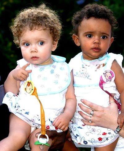 Удивительные близнецы (2 фото + текст)