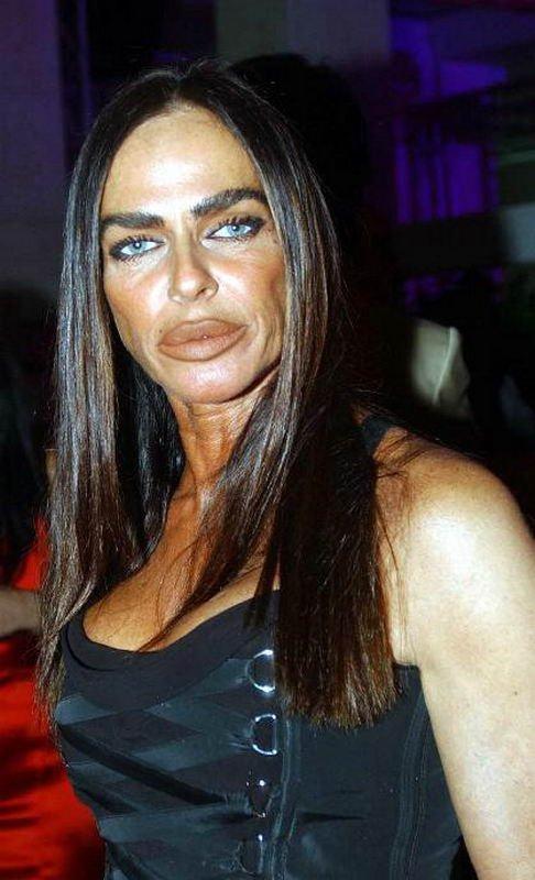 Девушки с силиконовыми губами (50 фото)