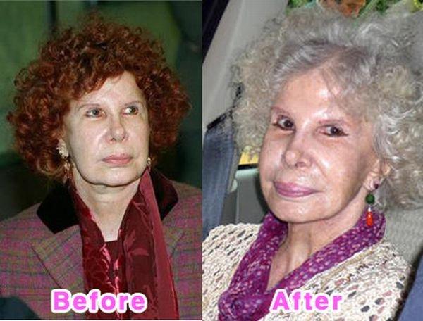 аманда лепор до и после фото