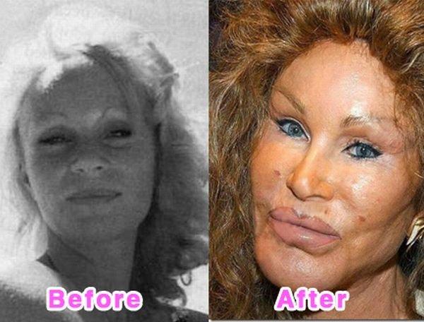 Звезды до и после пластических операций (16 фото)