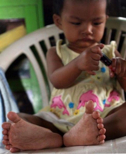 Девочка с 26 пальцами (2 фото)
