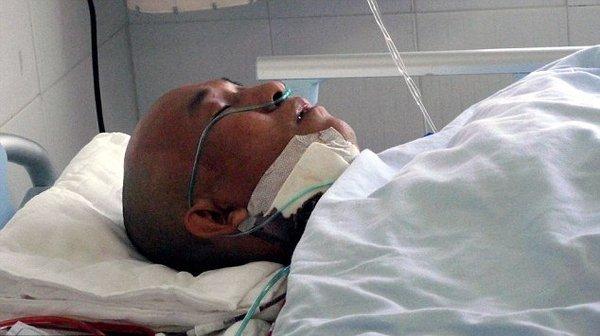 Китаец жил 4 года с ножом в голове (3 фото + текст)