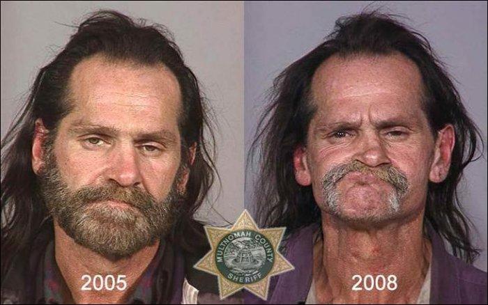 Как наркотики меняют людей (21 фото)