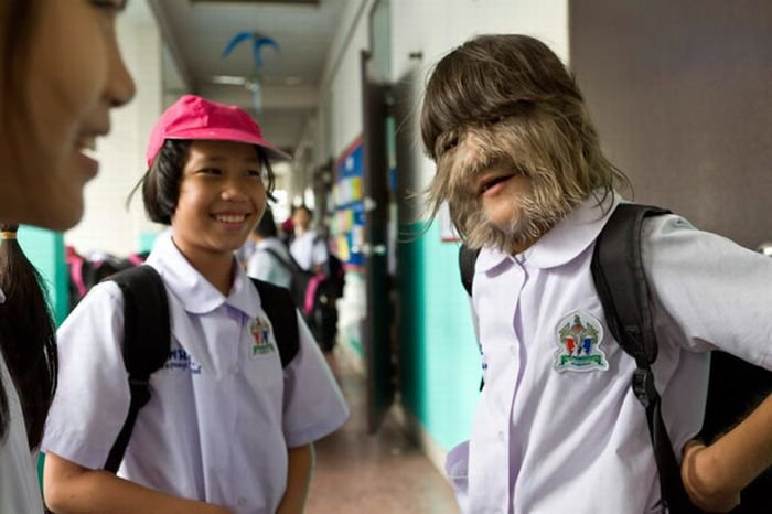 Девочка с волосатым лицом (13 фото)